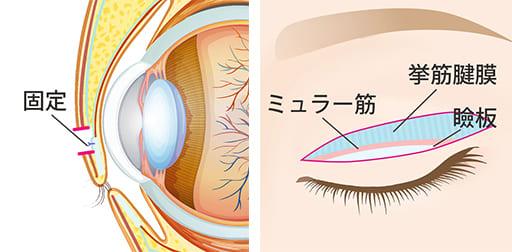 二重術や眼瞼下垂術を同時に行う場合