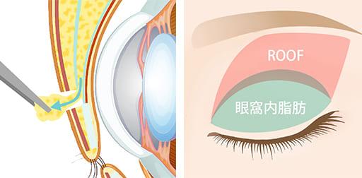 目の上の眼窩内脂肪が余分に余っている場合