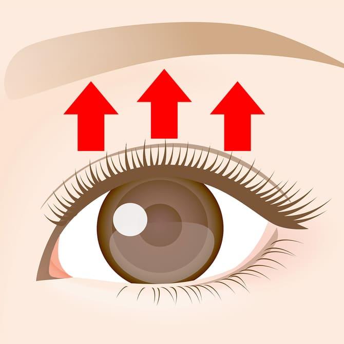 目の上たるみ取り術・脂肪取り術の完成図